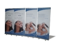 diamond-teeth-roll-up-banners
